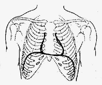 二尖瓣狭窄的心脏浊音界示意图