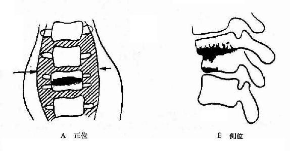 第1.2腰椎结核