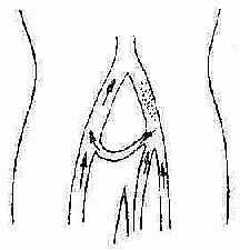 大隐静脉移植转流术