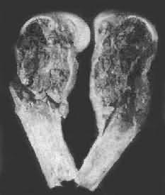 骨巨细胞瘤