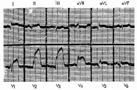 急性前壁心肌梗塞
