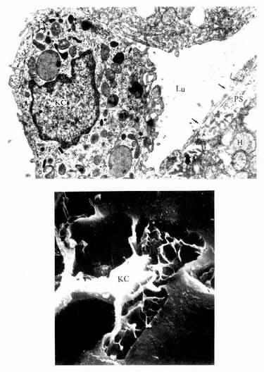 肝巨噬细胞(KC)电镜像