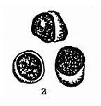 正常淋巴結穿刺塗片常見手細胞