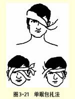 单眼三角巾包扎法