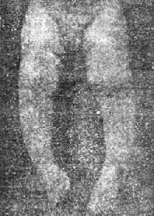 「O」形腿