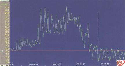 定点牵拉法检测LES压力