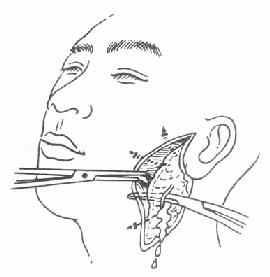 急性化脓性腮腺炎的切开引流