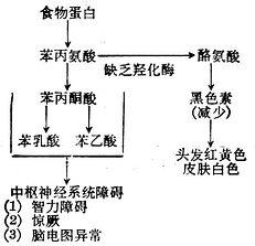 苯丙酮酸尿症的代谢缺陷与临床表现