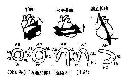 心肌断层影象节段模式图