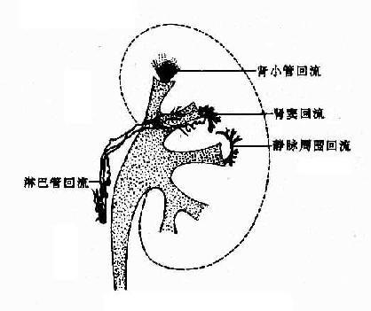 腎盂各種迴流