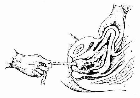 一手轻按宫底,另一手轻轻牵拉脐带, 娩出胎盘