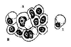 成堆腺癌细胞