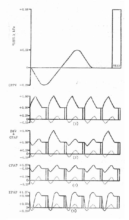 PEEP 治疗的各种机械通气类型