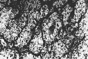 肾透明细胞腺癌