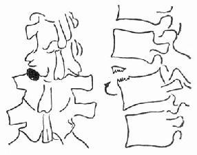 脊柱旋转损伤