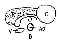 胰腺假性囊肿声象图