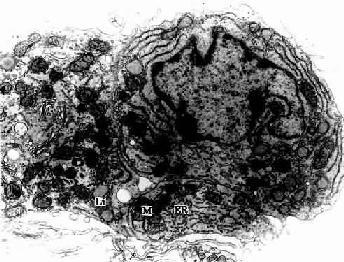 大鼠睾丸间质细胞电镜像