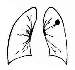 周围型肺癌
