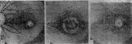 Rieger中心性视网膜炎