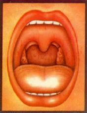 慢性扁桃体炎