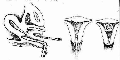 用放環鉗送入宮腔