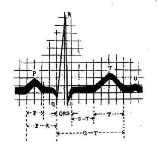 心电图各波和波段示意图