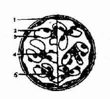 左侧为正常肾小球模式图,右侧为局灶性增殖性肾小球肾炎,部分系膜区系膜细胞和基质增生