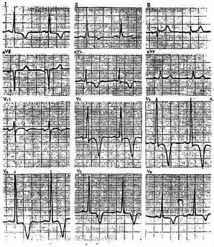 慢性冠状动脉供血不足心电图