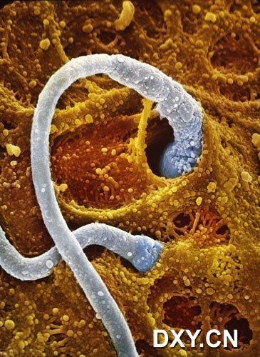 兩個精子正在鑽進卵子的「外殼」