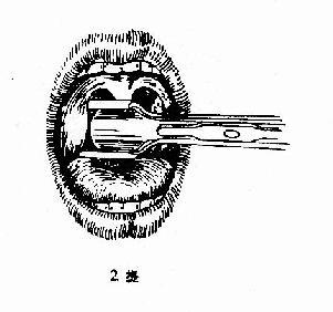 扁桃体挤切术