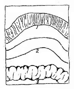 胀气肠管示意图