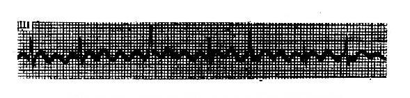 心房扑动(呈4:1至2:1不等)心室率不规则