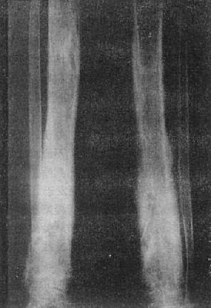 胫骨慢性化脓性骨髓炎,花边状骨膜增生