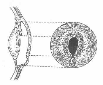 虹膜局部脱出的正面与侧面示意图