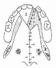 缝合鼻腔层粘膜