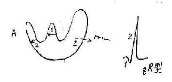 A正常心室除极、在左室外膜电极示qR型波群
