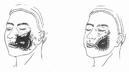 颊部全层贯通,组织广泛缺损