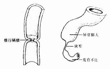 消化管狭窄或闭锁