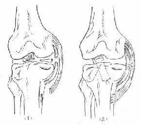 内侧副韧带和前十字韧带断裂合并内侧半月板破裂