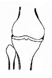 膝关节退行性骨关节病示骨关节面边缘性骨赘