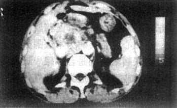 胰腺癌CT表現