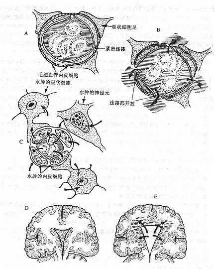 各类脑水肿发生机制示意图