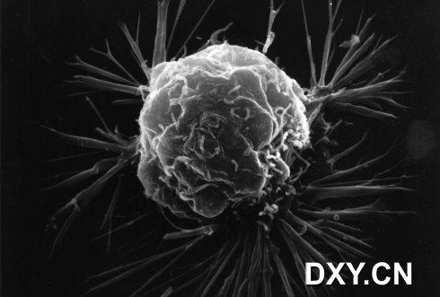 乳腺癌细胞的扫描电子显微照片