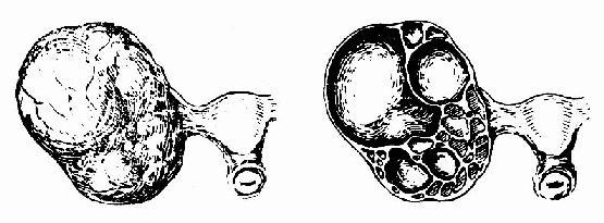 粘液性囊腺瘤