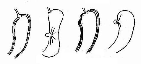 示胃溃疡与胃憩室