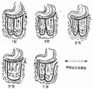大网膜血管类型及延长方法