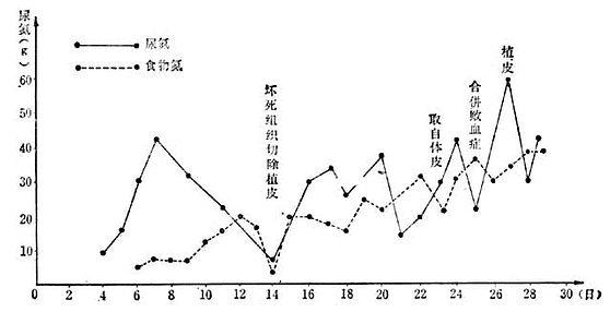 烧伤总面积86/Ⅲ°44%烧伤后每次手术及合并败血症时尿氮排出量的变化