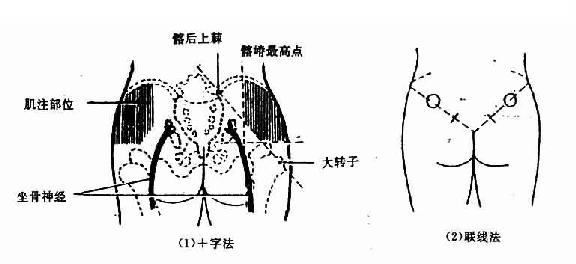 臀中肌和臀小肌的定位图片_护理学/肌内注射法 - A+医学百科
