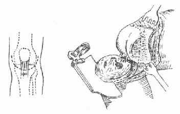 膝关节融合术