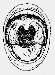 扁桃体位置及其大小分度示意图